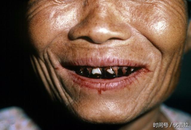 小伙每天嚼4包槟榔嘴巴张不开?喜欢吃槟榔要小心这些问题!图片图片