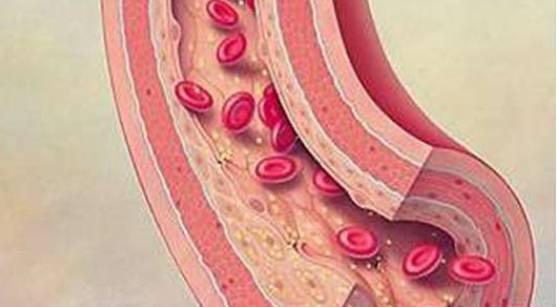 正常的动脉血管壁有一层光滑的内皮.