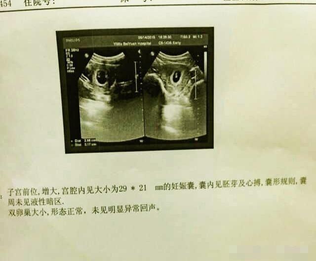 孕囊为椭圆形,肚型是圆的