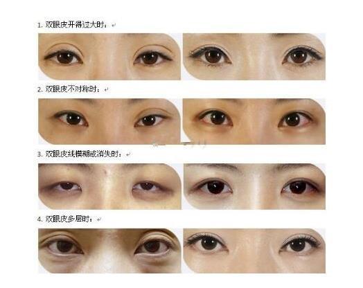 韩式双眼皮修复时间