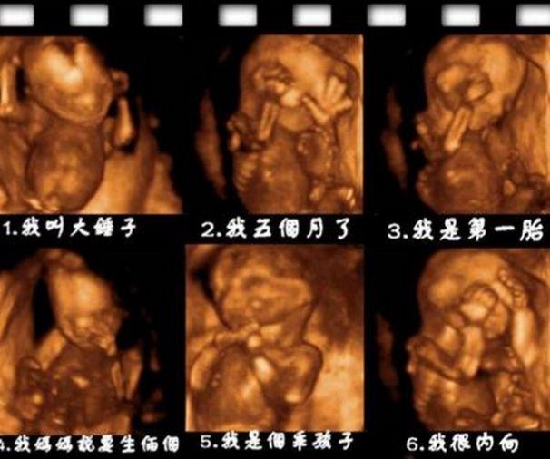 胎儿在妈妈肚子里的图片,表情丰富,动作可爱!