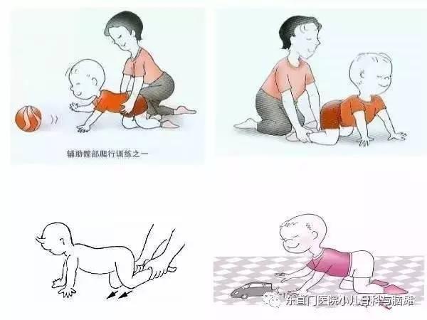 小儿脑瘫的三级预防详解