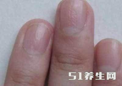 """若你的指甲出现这种""""直直的线"""",要当心啦,你百分之百中招了! - 罗杰军 - 羅傑軍      博客"""