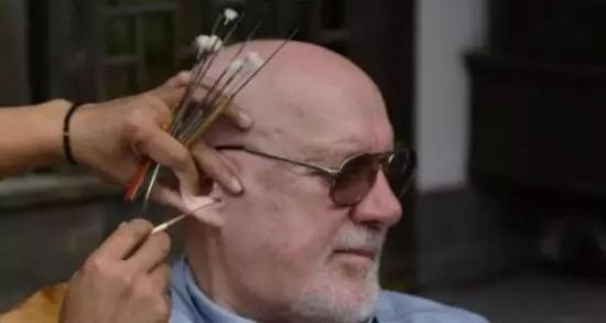 9成医生都不知道:耳屎到底该不该掏? - 眼科张健 - 眼科医师张健的博客